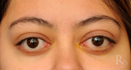 Bulging Eyes Could Be A Sign Of Serious Medical Condition Not
