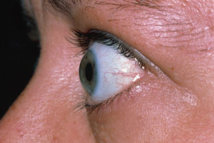 Bulging Eyes could be a sign  of serious Medical Condition & not Beauty