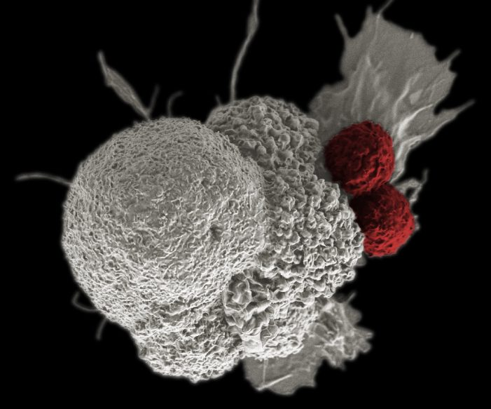 Predicting Immunotherapy Success